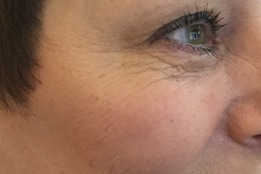 Botox to eyes/crows feet after