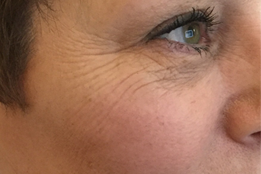 Botox to eyes/crows feet before